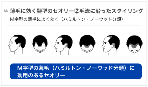 40代の薄毛に効く髪型の2大セオリー。M字型の薄毛に効く髪型